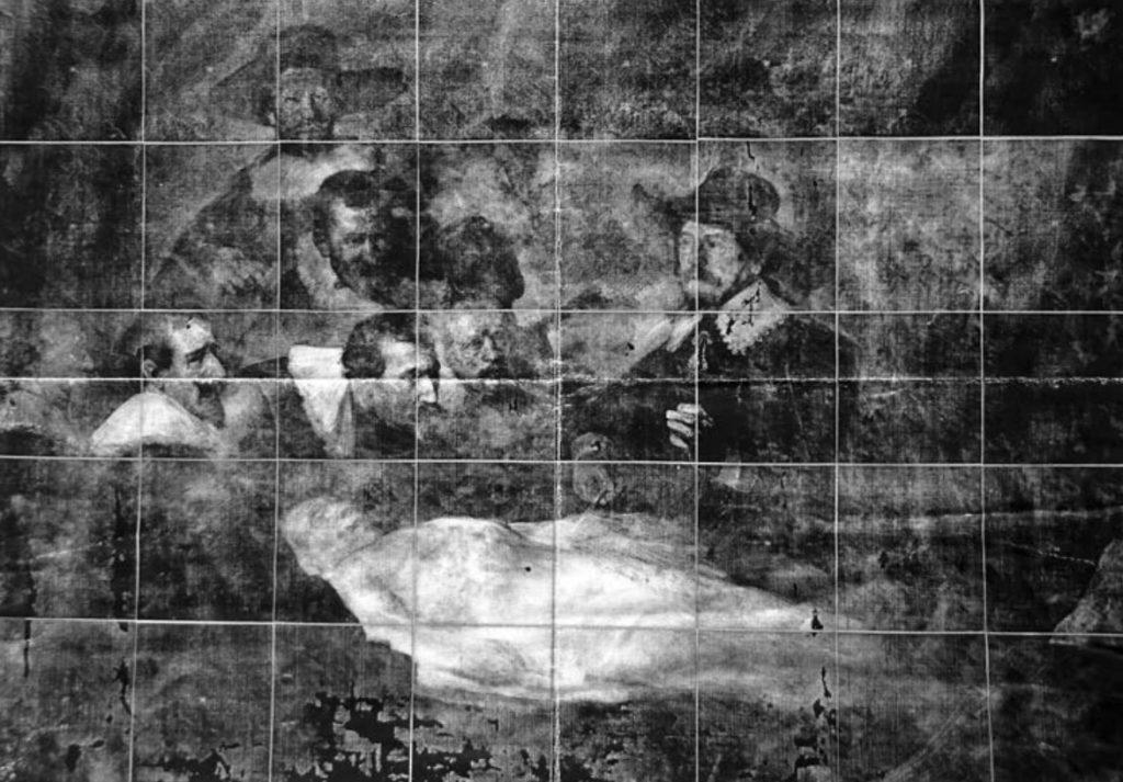 Radiographie de la Leçon d'Anatomie du docteur Tulp